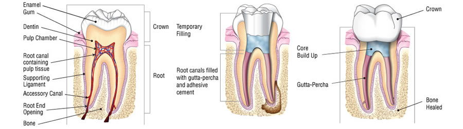 after arnica teeth extraction wisdom